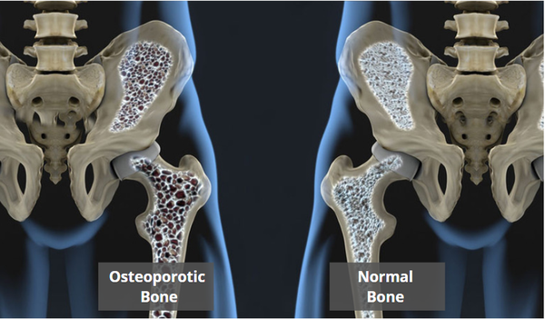 Bone Mineral Density Lifescan Imaging Services